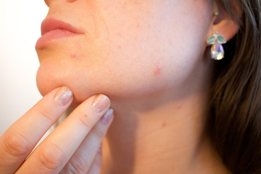 woman's skin with acne from imbalanced hormones